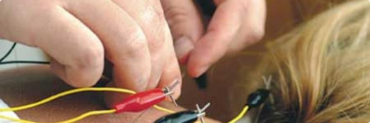Электроакупунктура