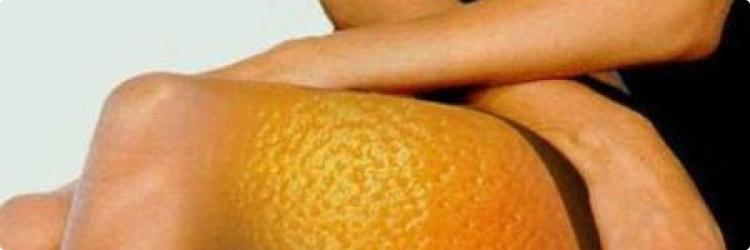 Народные средства борьбы с целлюлитом