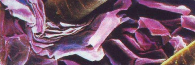 Перхоть – основные народные способы лечения и профилактика перхоти