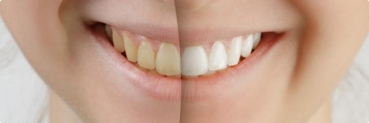 Диета для белизны и здоровья зубов