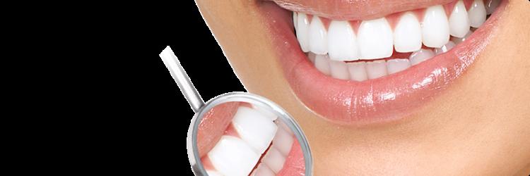 Эффективное отбеливание зубов в домашних условиях