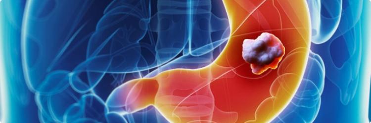 Рак желудка: причины развития заболевания, методы диагностирования и лечения