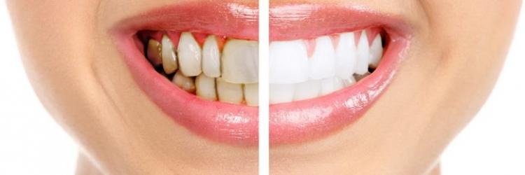 Лучшие рецепты отбеливания зубов в домашних условиях