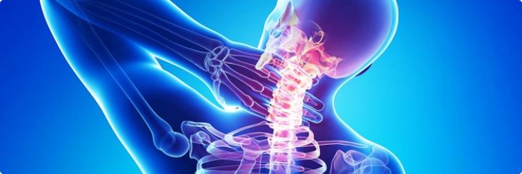 Остеохондроз шейного отдела позвоночника — лечение