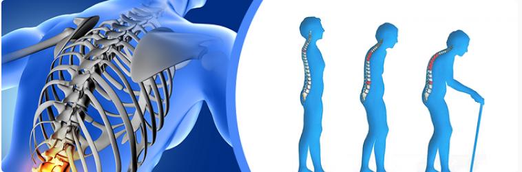 Остеопороз: методы лечения