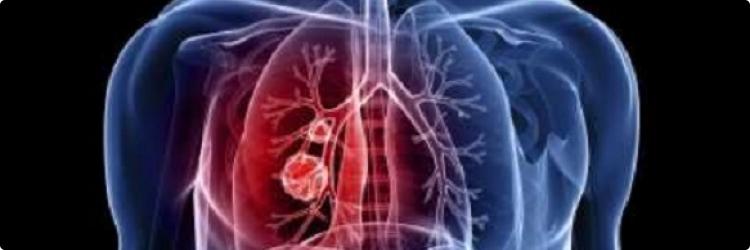 Почему туберкулёз - не приговор
