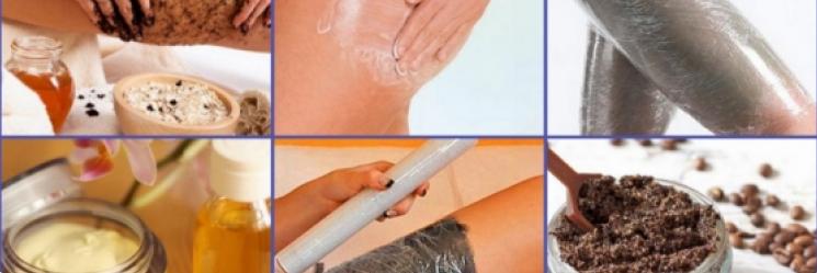 Самостоятельное лечение целлюлита с помощью фитотерапии и глины