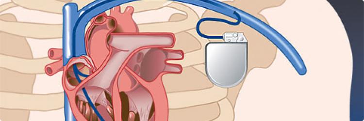Все о кардиостимуляторе
