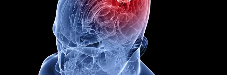 Как выполняется МРТ головного мозга