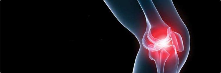 Гонартроз коленного сустава: особенности, диагностика, лечение
