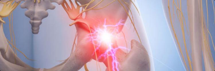 Защемление седалищного нерва лечение и профилактика