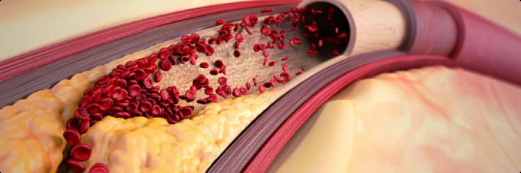 Атеросклероз: причины, признаки, профилактика, лечение