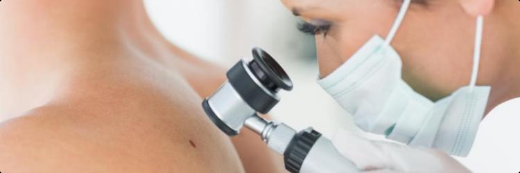 Базалиома кожи: особенности заболевания