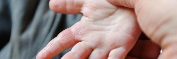 Что делать, если облезает кожа на пальцах рук у ребенка?
