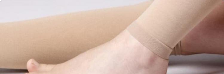 Чулки от варикозного расширения вен ног