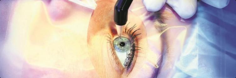 Эксимерлазерная коррекция зрения