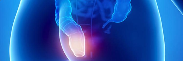 Как лечить геморрой, факторы риска и принципы лечения