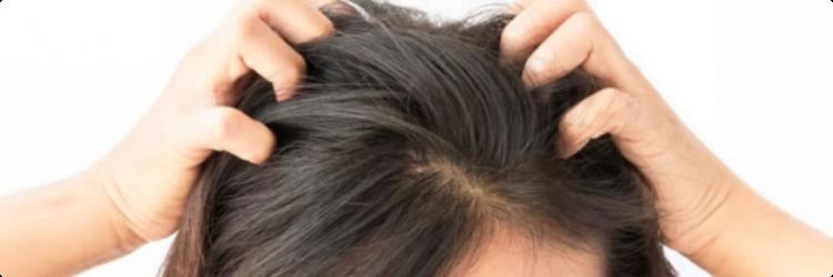 Как лечить псориаз на голове и его диагностика