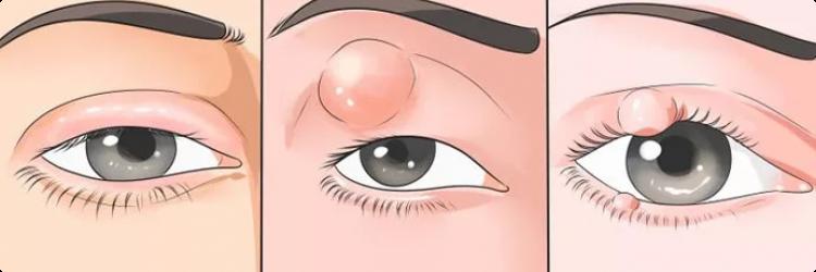 Как лечить ячмень на глазу?