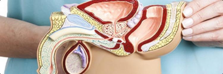 Лечение андрологических заболеваний гомеопатией