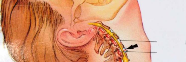 Лечение повреждений шейного отдела позвоночника
