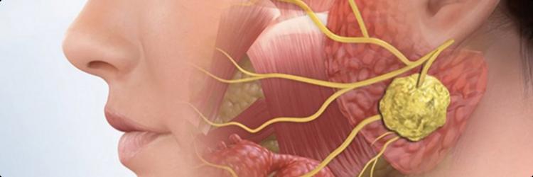 Методы лечения невралгии тройничного нерва
