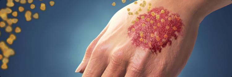 Можно ли заразиться псориазом