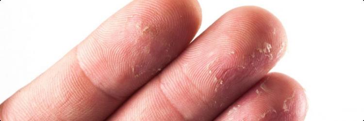 Облезает кожа на пальцах рук: причины