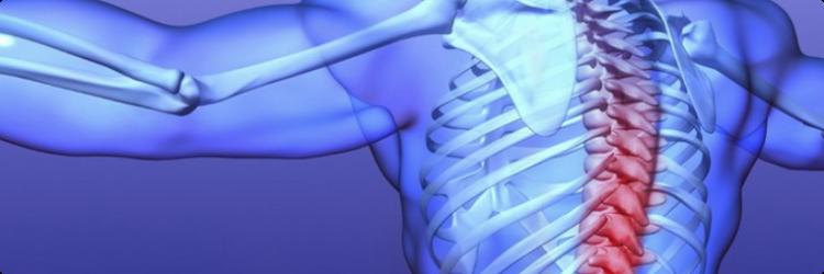 Остеохондроз второй степени: симптомы и лечение