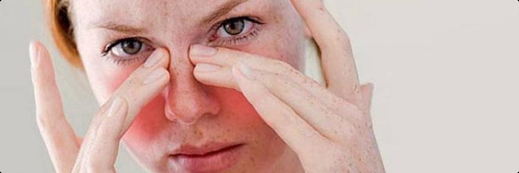 Первые признаки гайморита и симптомы гайморита