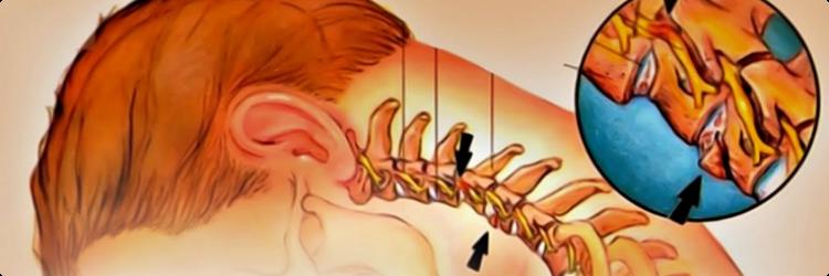 Польза зарядки при шейном остеохондрозе