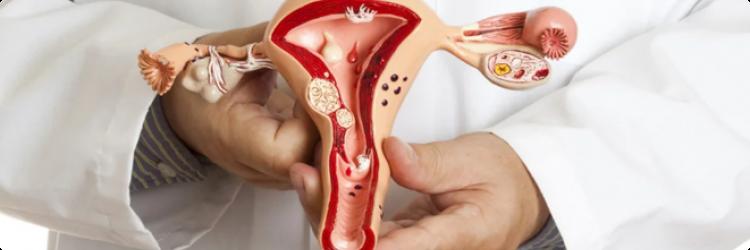 Причины эндометриоза, предрасполагающие факторы развития болезн
