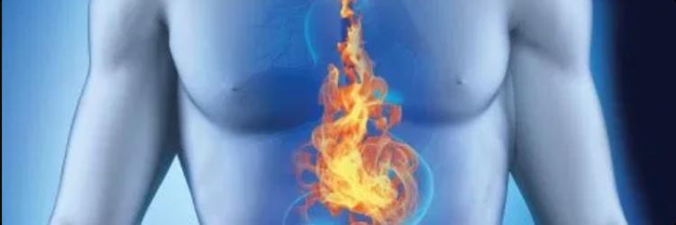 Причины и заболевания приводящие к появлению изжоги