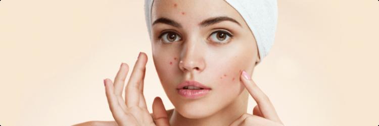 Методы профилактики и очистки кожи от акне