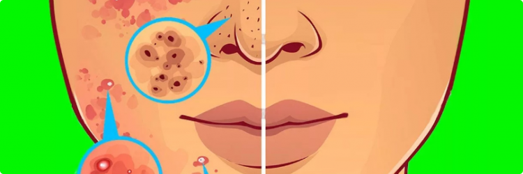 Прыщи на лице как индикатор недугов органов