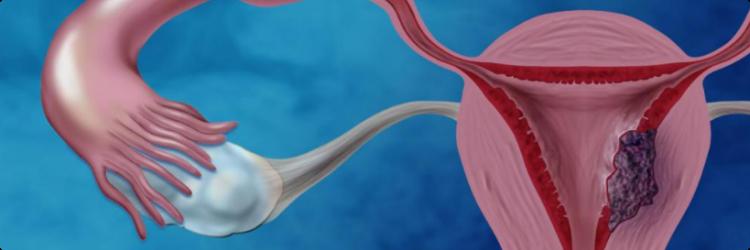 Ранние визиты к гинекологу спасают жизни