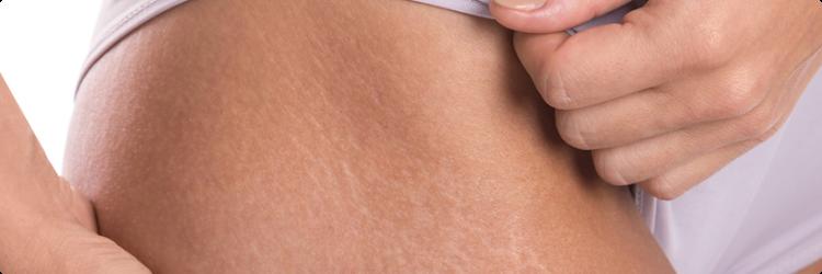 Растяжки на коже (стрии) — причины, как предотвратить, лечение