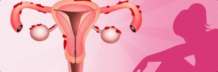 Симптомы эндометриоза, причины и основы лечения