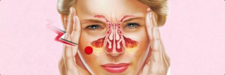 Симптомы и лечение хронического гайморита