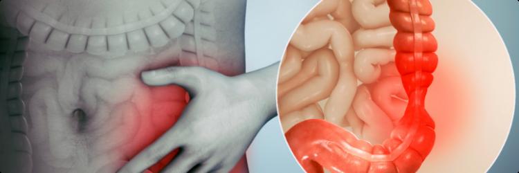 Синдром раздраженного кишечника, влияние на общее здоровье