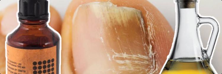 Средства народной медицины от грибка ногтей
