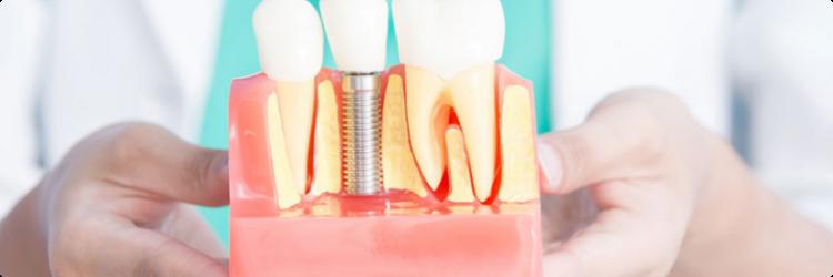 Возможности и виды имплантации зубов