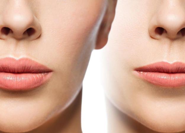 Как самостоятельно эффективно и безопасно увеличить губы?