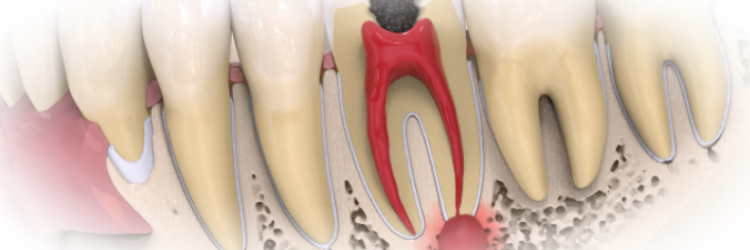 Как лечится киста зуба