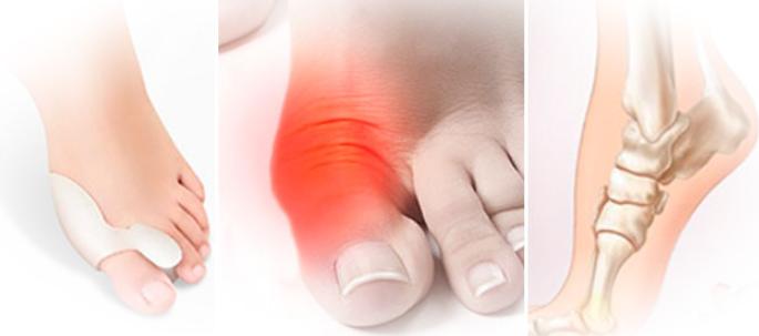 Методы Лечения Шишки Большого Пальца На Ноге