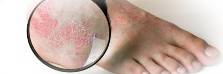 Причины и симптомы псориаза