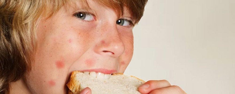 Аллергия на сладкое: питание, к кому обращаться