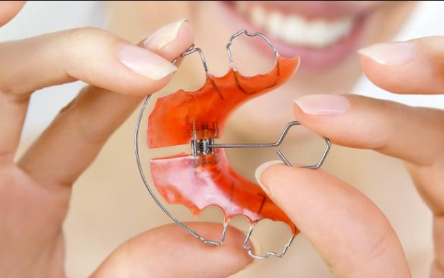 Ортодонтия может быть эстетической