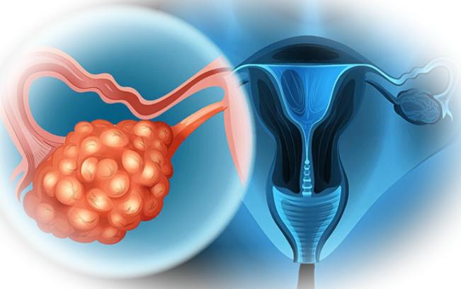 Симптомы возникновения поликистоза яичников