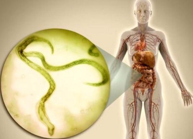 Гельминты в теле человека: симптомы и лечение